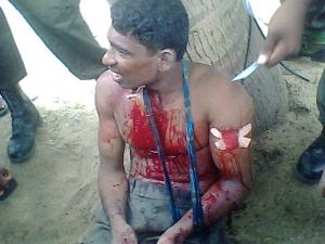 2009_SriLanka_Victim.jpg